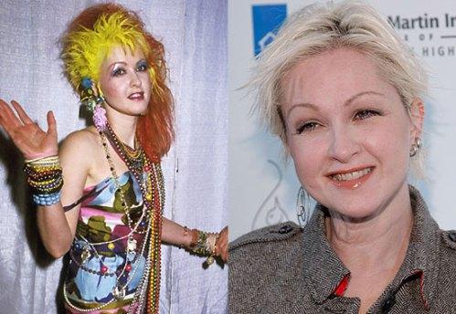 Cyndi antes e depois